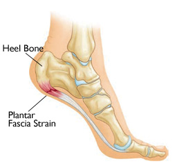 Plantar Fasciitis. What is Plantar Fasciitis and how would the ... 62c2be8a1bd